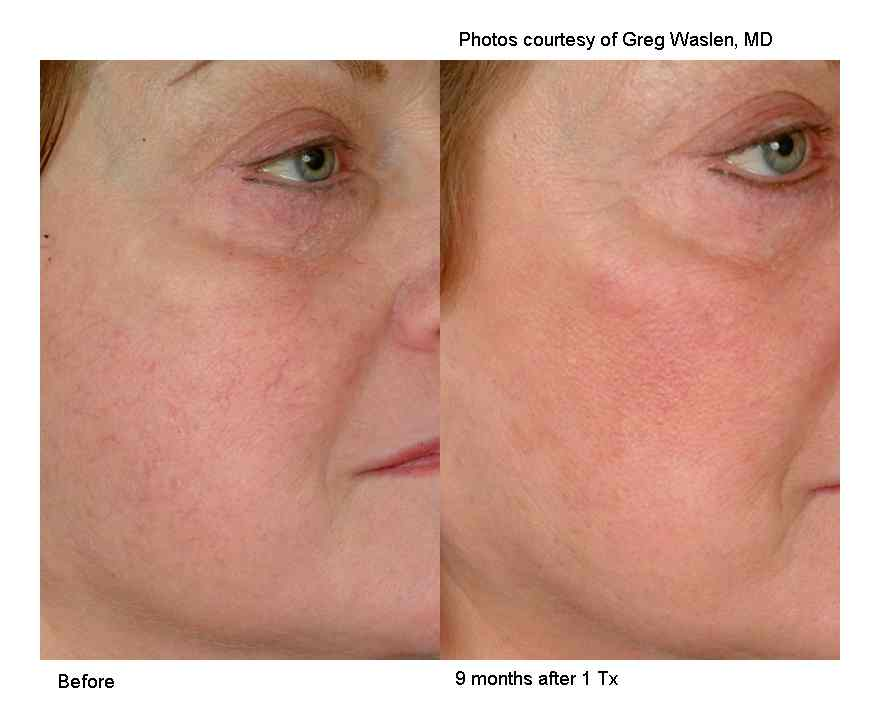 eliminate facial fat