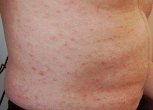 maculopapular-rash